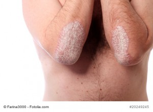schuppenflechte - psoriasis am ellenbogen - nahaufnahme