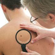 Hautkrebs rechtzeitig feststellen ist wichtig