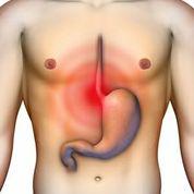 Sodbrennen und Magenschmerzen treten oft gemeinsam auf