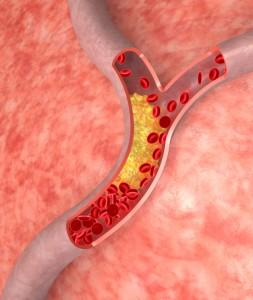 Fettstoffwechselstörungen verursachen Ablagerungen