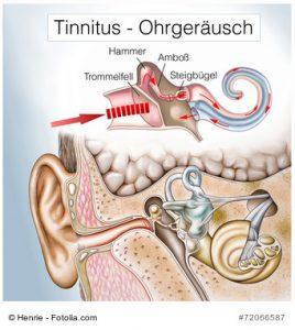 Tinnitus (Ohrensausen)