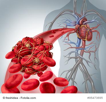 Thrombose: Schmeatische Darstellung