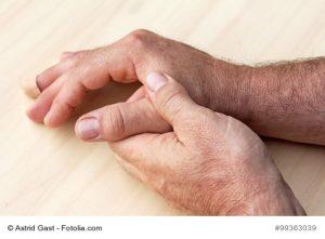 Von Gicht betroffene Hände