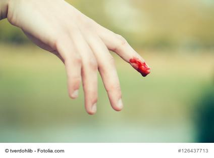 Quetschwunde am Finger