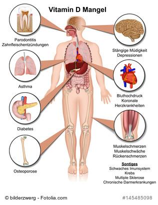 Anzeichen für Vitamin-D-Mangel
