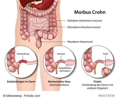 Symptome bei Morbus Crohn