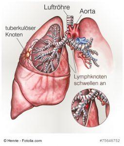 Lungentuberkulose: Lymphknoten schwellen an.