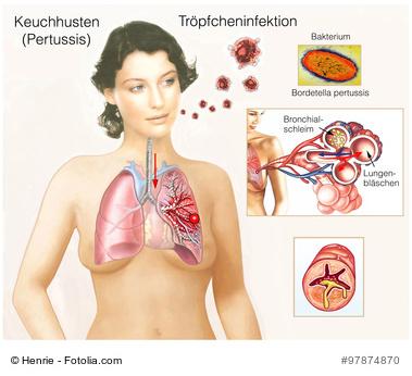 Keuchhusten