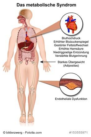 Beschwerden beim Metabolischen Syndrom