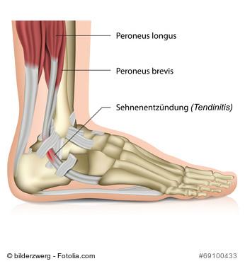 Sehnenscheidenentzündung am Fuß