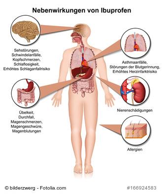 Nebenwirkungen von Ibuprofen