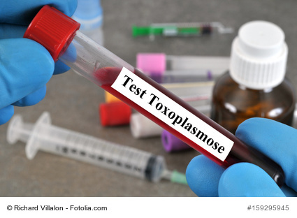 Test Toxoplasmose