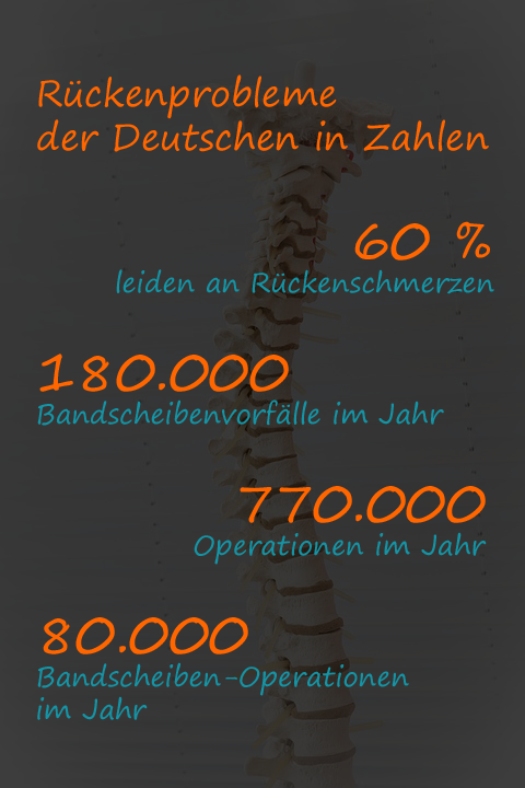 Infografik zu Rückenproblemen
