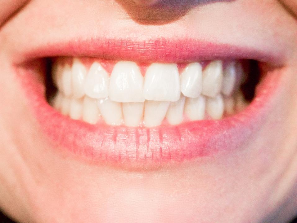 Weißes Lächeln