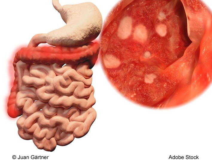 Darmerkranung Colitis ulcerosa