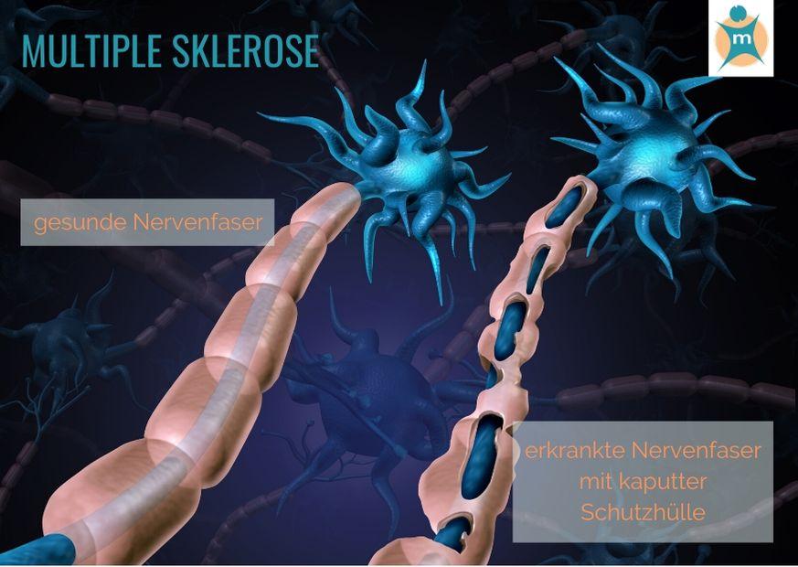 Multiple Sklerose Erblich