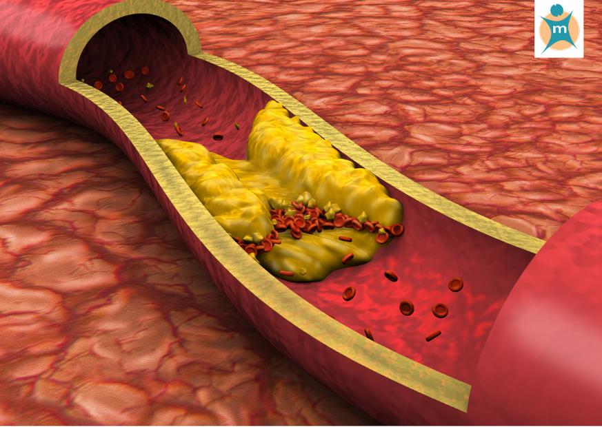 Arteriosklerose Medikamente