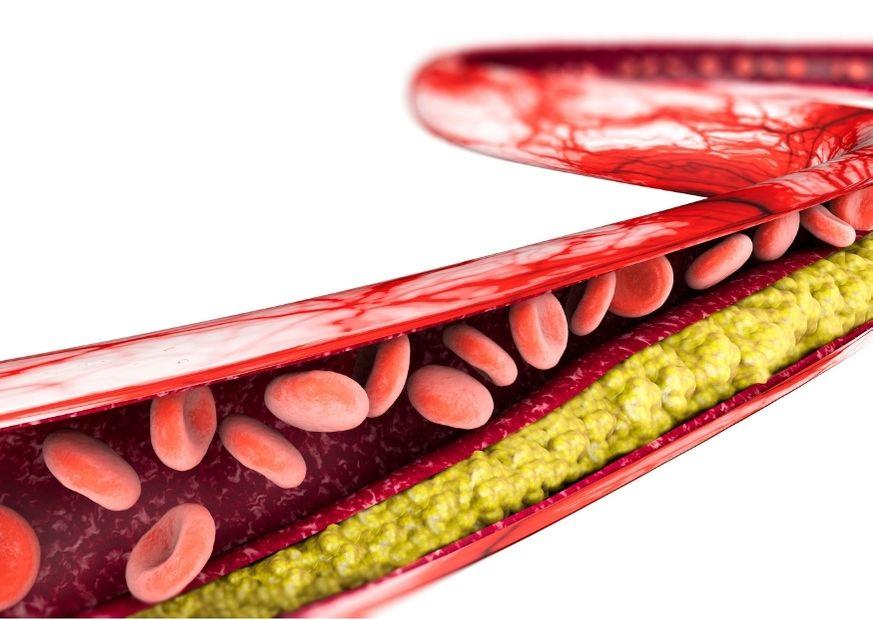 Cholesterin lagert sich ab