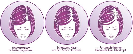 Wie das Haar fettig bei den Wurzeln trocken auf den Spitzen zu behandeln